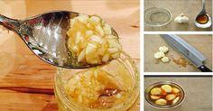 Dieser erstaunliche Knoblauchsirup ist nicht nur sehr praktisch, sondern die Zutaten die du dafür brauchst sind günstig und er ist einfach zuzubereiten. Alles was du für dieses Heilmittel brauchst ist Apfelessig, Knoblauch und etwas Honig. Alle diese Zutaten bieten kraftvolle gesundheitliche Vorteil