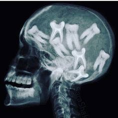 Dentaltown - This is your brain on dentistry.