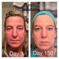 I love Cheryl's results! She has been using R+F for 5 months! She started out with the Redefine Amp It Up and the Eye Cream. She has since added the Reverse Regimen and our Acute Care! Seriously, I can not stop looking at the changes in her skin!!  Are you ready yet??  #consistencyiskey #lovemyvirtualfranchise #RFTeamResilient