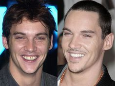 Jonathan Rhys Meyer teeth before and after