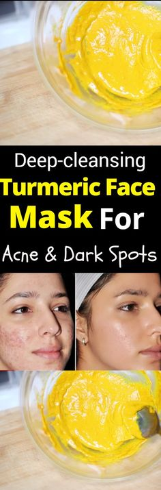 Turmeric Face Mask F