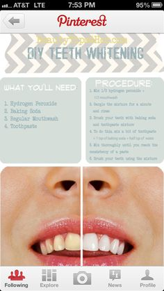 #HOW TO GET WHITER TEETH -I personally have not tried this yet, but intend to