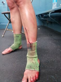 Kate McGray's spilt shin after a fight in Canada.