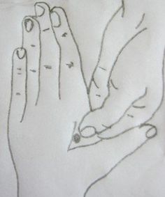 Acupuncture Migraine figure 9 - Acupressure is a simple and effective alternative therapy that helps resolve health issues safely. Learn about pressure point therapy for migraines and headaches in this article. Migraine Pressure Points, Pressure Point Therapy, Acupuncture Points, Acupressure Points, Migraine Home Remedies, Acupressure Treatment, Reflexology Massage, Massage Benefits, Massage Techniques