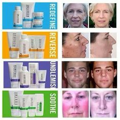 Rodan + Fields before/after pics. If you're suffering from ANY skin issues Rodan +Fields has the solution. Not only can you have amazing skin, you can have an amazing career with R+F. Check out my website: Ginahill.myrandf.com