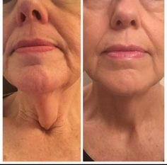 Before and Adter pictures from using Optimera ....#musttry go to www.saletoday.nerium.com