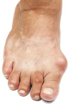 Natural Remedies For Swollen Feet A bunion is a bony swelling at the base of the big toe. The medical name for a bunion is hallux valgus. How To Treat Gout, How To Cure Gout, Foods That Cause Gout, Nail Treatment, Gout Recipes, Foot Remedies, Ankle Pain, Diet, Cleaning