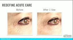 Rodan + Fields Acute Care results after 1 use. After using every 3rd day for a month Results last up to 12 weeks. Fill a wrinkle while you sleep. No needle required. Preferred customers can order Oct 27, 2014. Otherwise it hits market in 2015. www.cwarne.myrandf.com