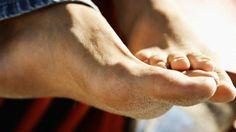 tratar infecciones de pies y uñas