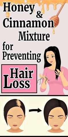 Honey and Cinnamon Mixture for Preventing Hair Loss - Health Hacks Natural Hair Loss Treatment, Stop Hair Loss, Prevent Hair Loss, Natural Beauty Tips, Natural Hair Styles, Honey And Cinnamon, Cinnamon Hair, Hair Loss Remedies, Hair
