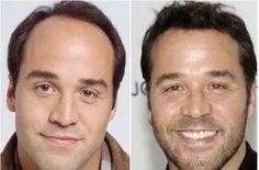 Tratamento Queda De Cabelos. Saiba como milhares de pessoas no mundo todo resolveram seus problemas com a queda de cabelos? Com suplementação alimentar! | Classificados Grátis – Free Classificados