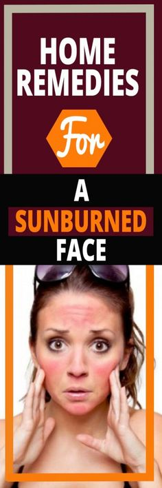 Home Remedies for a Sunburned Face