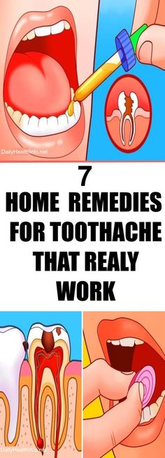 7 Home Remedies For Toothache That Really Work. #HomeRemedies #Toothache #Pain #Relief - #HomeRemediesForToothachePain #ToothachePain #HomeRemediesForToothache #ToothachePainRelief #ToothacheTreatment #ToothacheRelief #ToothPain