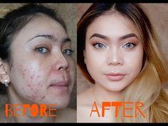 Tutupi Jerawat dengan Makeup Murah DRUGSTORE | SADDY AULIA - YouTube