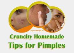 18 Quick and Crunchy Homemade Tips for Pimples