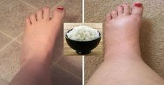 HOW TO USE THE R-I-C-E METHOD TO QUICKLY GET RID OF SWOLLEN ANKLES, LEGS AND FEET