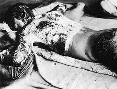 An A-bomb victim with burns over his entire body, August 7, 1945