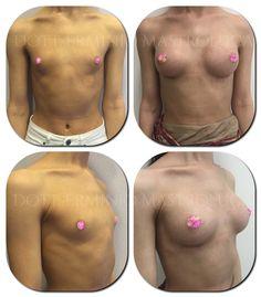 Mastoplastica Additiva sottomuscolare. Protesi anatomiche 255. www.erminiomastroluca.it