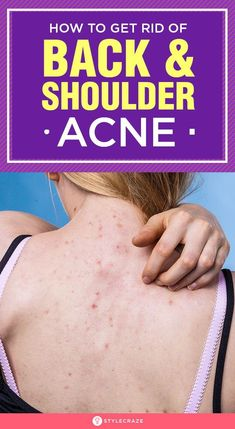 How To Get Rid Of Back and Shoulder Acne Fast: Back and shoulder acne not just ruins your appearance but also affects your self-confidence. What if I tell that you will find all the solutions to your back acne problems right here? Keep reading to know Back Acne Treatment, Natural Acne Treatment, Acne Skin, Acne Scars, Acne Face, Oily Skin, Back Acne Causes, Back Acne Remedies, Natural Remedies