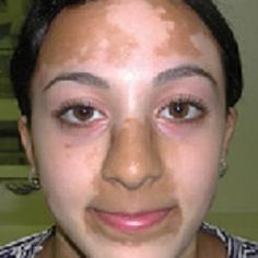 [toc]Vitiligo is a skin disease and white spots appear on the skin of the victim. Vitiligo occurs due to a general abnormality in the immunity system of the Natural Treatments, Natural Cures, Skin Treatments, Natural Healing, Health And Nutrition, Health Tips, Health And Wellness, Health And Beauty, Aromatherapy