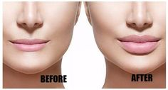 Lip Augmentation in India. Lip augmentation is a cosmetic procedure that can give you fuller, plumper lips. These days, an injectable dermal filler is the most commonly used method of lip augmentation. Facial Fillers, Dermal Fillers, Diy Lip Plumper, Lip Augmentation, Lip Implants, Thin Lips, Lip Shapes, How To Apply Lipstick, Perfect Lips