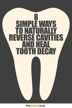 Top Oral Health Advice To Keep Your Teeth Healthy. The smile on your face is what people first notice about you, so caring for your teeth is very important. Unluckily, picking the best dental care tips migh Heal Cavities, How To Prevent Cavities, What Causes Tooth Decay, Reverse Cavities, Receding Gums, Best Oral, Oral Hygiene, Oral Health, Teeth Health