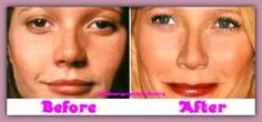 Gwyneth Paltrow and plastic and reconstructive surgery