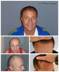 En anden 9000+ hår Transplant- PHAEYDE Klinik Zoltan havde en enorm og alvorlig skaldethed zone på toppen af hans hoved. Vores opgave var at fylde den op, på den bedst mulige måde, med den mest naturlige hårgrænse til at skabe. Han havde en 2 dagen lang behandling, og blive en glad og endnu mere selvsikker mand efter 1 år. Lavet af PHAEYDE Klinik.  http://dk.phaeyde.com/har-implantation