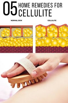 Best 5 Remedies For CelluliteCellulite (or Adiposis Edematosa) is a most common problem for most of the men and women in these days. It affects mostly on the thighs and then on the legs, hips, stomach, and buttocks. It is made of free floating fat cells that get deposited just beneath the skin and appears on the skin as a dimpled surface of an orange peel or cottage cheese.  Hormonal imbalance, heredity, unhealthy diet, aging and improper lifestyle are some of the causes of cellulite. There…