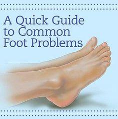 75 Best Diabetic Foot Care Images Diabetes Diabetes Information