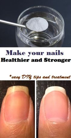 9 Easy Beauty Hacks That Will Change Your Life 9 Easy Beauty Hacks That Will Change Your Life Beauty Nails, Beauty Skin, Beauty Care, Diy Beauty, Do It Yourself Nails, Limpieza Natural, Nagel Hacks, Tips Belleza, Health And Beauty Tips