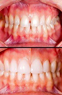 Dental Implant costs and veneers costs: How much do veneers in Hungary cost? Veneers costs in the UK and Hungary with examples of treatments of 6 and 12 teeth Bone Grafting, Dental Check Up, Dental Aesthetics, Veneers Teeth, Teeth Shape, Porcelain Veneers, Dental Cosmetics, Receding Gums, Health
