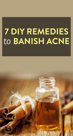 7 DIY Acne Remedies via @bustledotcom