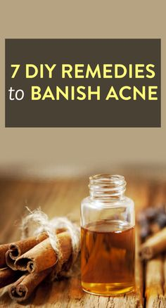 7 DIY Acne Remedies via @bustledotcom