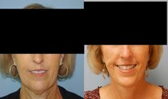 Facial plastic surgeon portland or