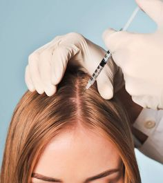 Mesotherapy For Hair Growth & Does It Work?, Alopecia, commonly termed as hair loss or baldness, is the problem of loss of hair from the scalp and the body. It is experienced by people throughout the wo, Damaged Hair Repair Diy, New Hair Growth, Hair Loss Women, Hair Loss Remedies, Hair Regrowth, Hair Follicles, Hair Restoration, Hair Transplant, Hair Loss Treatment