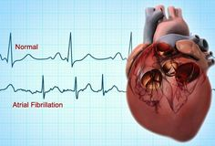 Atrial Fibrillation Pictures: Symptoms, Causes, Tests, and Treatments