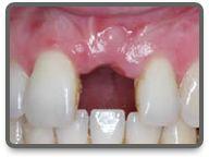 fehlender Dental Implant Cost, Hungary, Health