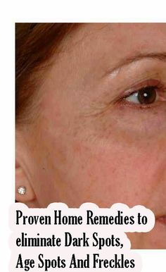 Proven Home Remedies to eliminate Dark Spots, Age Spots And Freckles | Tips Zone