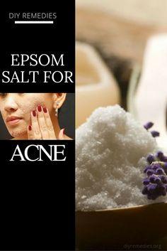5 Best Methods of Epsom Salt for Acne