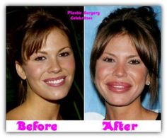 She was beautiful before....why would she do this to herself????