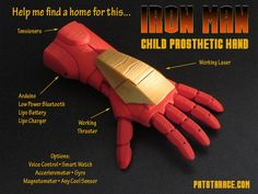 Iron Man inspires 3D-printed prosthetic hand for kids