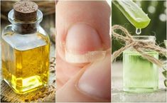 Taking care of your nails has become an essential part of beauty routines. Here are 5 natural remedies to help strengthen weak nails. Healthy Nails, Healthy Skin Care, Home Beauty Tips, Beauty Hacks, Face Care Tips, Gel Aloe, Broken Nails, Brittle Nails, Acide Aminé