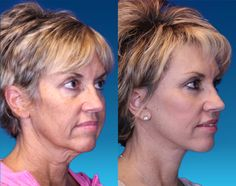 Angela, 51 – Youthful Reflections Facelift / Reflection Lift Fat Transfer Fractional Co2 Laser Skin Resurfacing