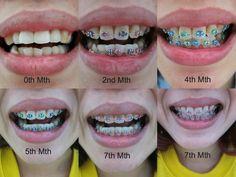 Dental Braces - I like the month color. Braces Food, Braces Tips, Kids Braces, Dental Braces, Dental Teeth, Dental Care, Braces Smile, Teeth Braces, Braces Transformation