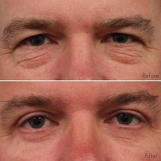 This patient didn't want to look tired anymore. He had both an upper and lower lid blepharoplasty (eyelid surgery) with lipotransfers to the lower lids and midface. #WilliamsCenter #DrEdwinWilliams #eyelidsurgery #bagsunderyeyes #hoodedeyelids #blepharoplasty
