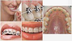 Những thói quen xấu làm ảnh hưởng dẫn đến tình trạng răng mọc lệch, chen chúc  như: mút tay,mút môi, đẩy lưỡi, thở bằng miệng… Tình trạng răng gãy, răng hư hỏng hay mất răng cũng là nguyên nhân răng bị xô đẩy, dẫn đến tình trạng mọc lệch của răng.