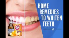 http://www.teethwhiteningdoneright.com  If you need an even faster teeth whitening treatment , Then click to find out about a powerful home treatment.