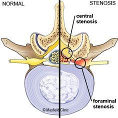 Cauda Equina Syndrome, Spine Problems, Spinal Canal, Spondylolisthesis, Spinal Decompression, Spinal Nerve, Brain Anatomy, Degenerative Disc Disease, Spine Surgery