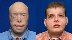 Firefighter Patrick Hardison Receives World's Most Extensive Face Tansplant Thanks to 3D Printed Guides